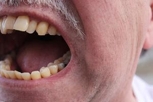 Foto grote mond